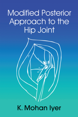 Modified Posterior Approach to the Hip Joint